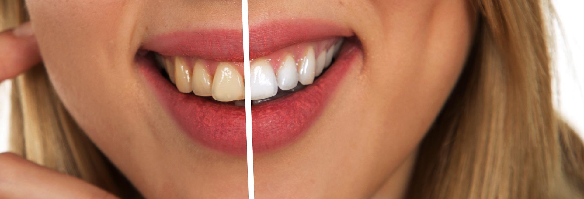 Zwarte Koolstof Tandpasta Voor Witte Tanden Puur Fit Academie